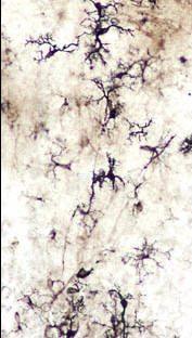microglia-16x-1