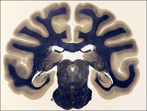 Weil Stain for Myelin | NeuroScience Associates